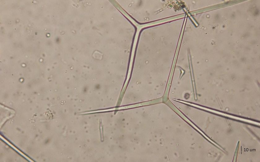 Grote witte buisjesspons Leucosolenia somesii spicula Foto Floris Bennema